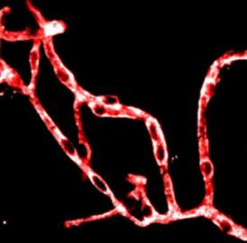 Studies in mice showed how brain blood vessel cells called pericytes (white) may contribute to the problems associated with Alzheimer's disease.