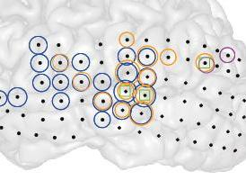 This is a 3-D image of the left brain hemisphere of a patient with tinnitus (right) and the part of that hemisphere containing primary auditory cortex (left). Black dots indicate all the sites recorded from. Colored circles indicate electrodes at which the strength of ongoing brain activity correlated with the current strength of tinnitus perceived by the patient. Different colors indicate different frequencies of brain activity (blue = low, magenta = middle, orange = high) whose strength changed alongside tinnitus. Green squares indicate sites where the interaction between these different frequencies changed alongside changes in tinnitus.