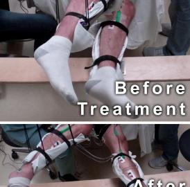 This image shows the range of voluntary movement prior to receiving stimulation compared to movement after receiving stimulation, physical conditioning, and buspirone. The subject's legs are supported so that they can move without resistance from gravity. The electrodes on the legs are used for recording muscle activity.