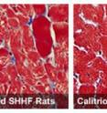 Heart muscle cells in untreated rats bred to develop heart failure show signs of disease. Right: Heart muscle cells remain healthy in rats treated with calcitriol, the hormone that Vitamin D becomes in the body.