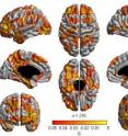 Areas in the brain where there is an association between general cognitive ability and cortical thickness.