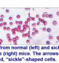 "Normal (left) and sickle cell (right) mouse red blood cells show the rigid, crescent-shaped ""sickled"" cells (arrows)."
