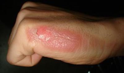 new skin gel made of silvernanoparticles may help improvethe ...