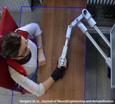 Robot may help stroke patients