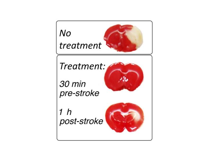 The treatment works both before and after the stroke has occurred